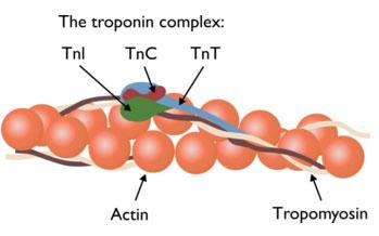 troponin 1