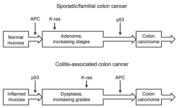 Figure 3 Major steps of sporadic/familial and colitis associated colon cancer formation