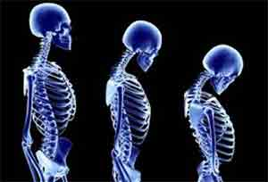 osteoporosis2
