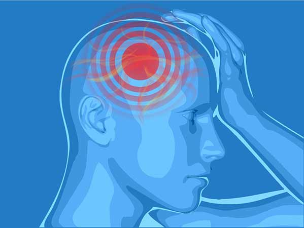 cluster headaches